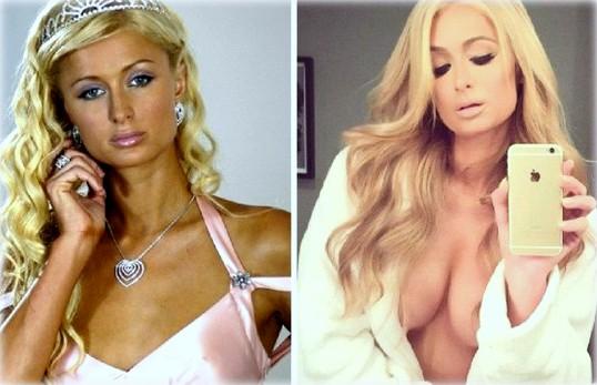 фото маммопластика до и после