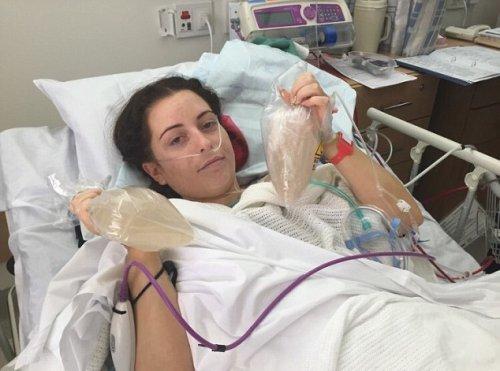 пластическая операция груди фото