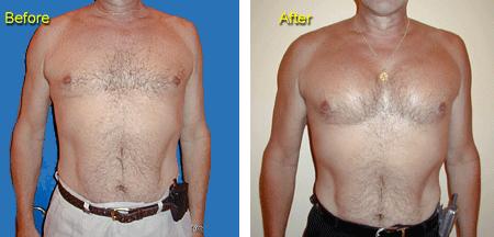 Как я увеличила грудь за 2 недели