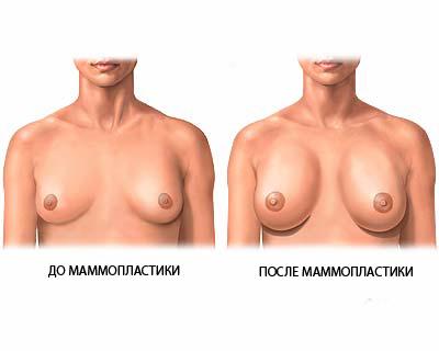 липосакция женской груди