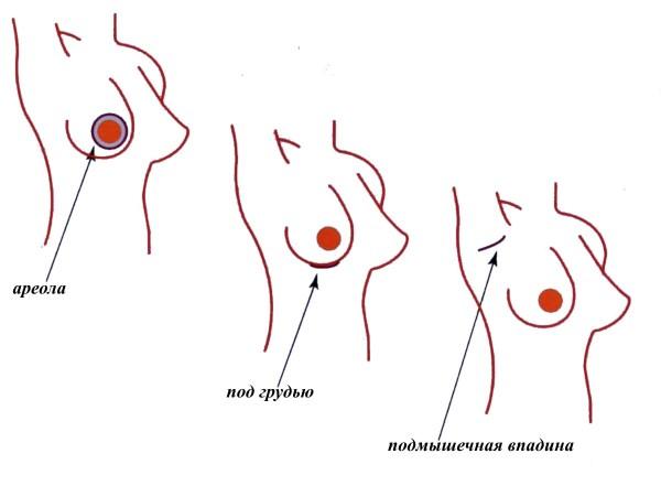 Самая сексуальная форма груди